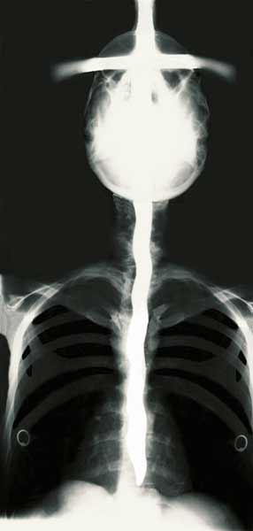 X-ray of Dai Andrews
